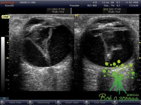 Как влияют на зрение аппараты УЗИ и электрокардиографы